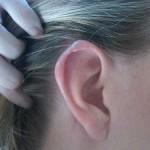 耳垢が臭い湿った状態は病気のサイン?原因と改善方法はコレ!