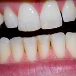 歯周病の症状をチェック!初期で気づく事が悪化を防ぐ方法!