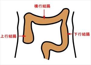 chou16 1 便秘と腹痛が長く治らない原因は落下腸かも!症状をチェック!