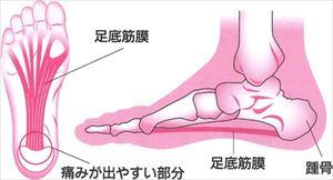 sokuteikinmaku7 1 足底筋膜炎の原因と症状をチェック!突然のかかとの痛みに注意