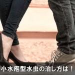 足の裏や側面が痒い小水疱型水虫の治し方は!症状がうつる!