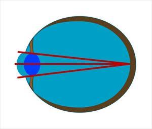 mesikumi5 1 遠くがぼやけて見えにくい症状は近視!原因と2つの種類とは!