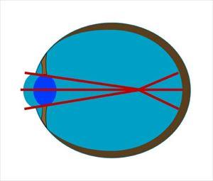 mesikumi5 2 遠くがぼやけて見えにくい症状は近視!原因と2つの種類とは!