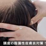 頭が痒くフケが増える頭皮の脂漏性皮膚炎の対処法と予防対策!