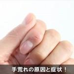 指先がカサカサする時は手荒れに注意!症状と原因をチェック!